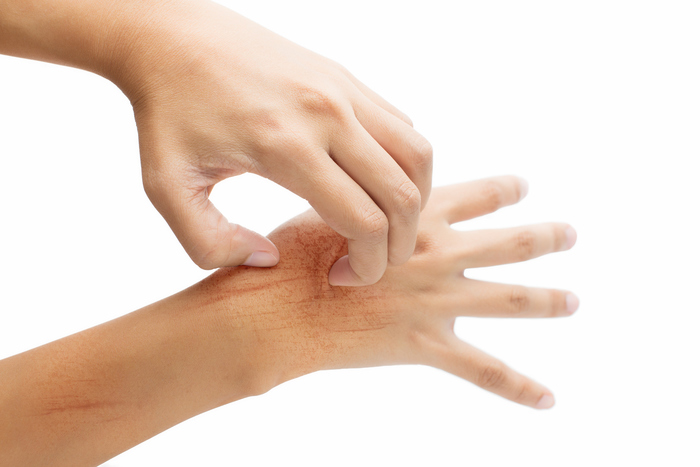 Menthol and Antihistamine for Itching and Inflammation